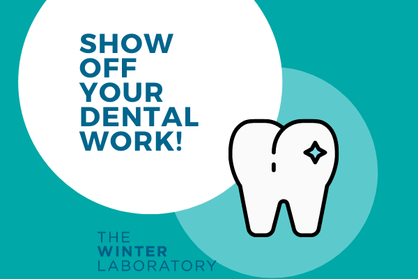 show off your dental work