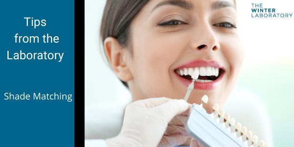 Dental Restoration shade matching tips